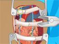 Operácia srdca
